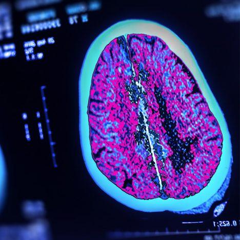 image of brain on screen