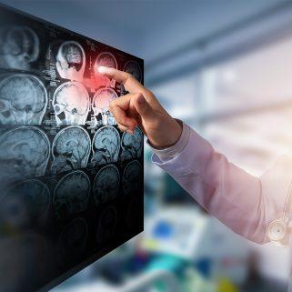 Doctors analysing images of skulls
